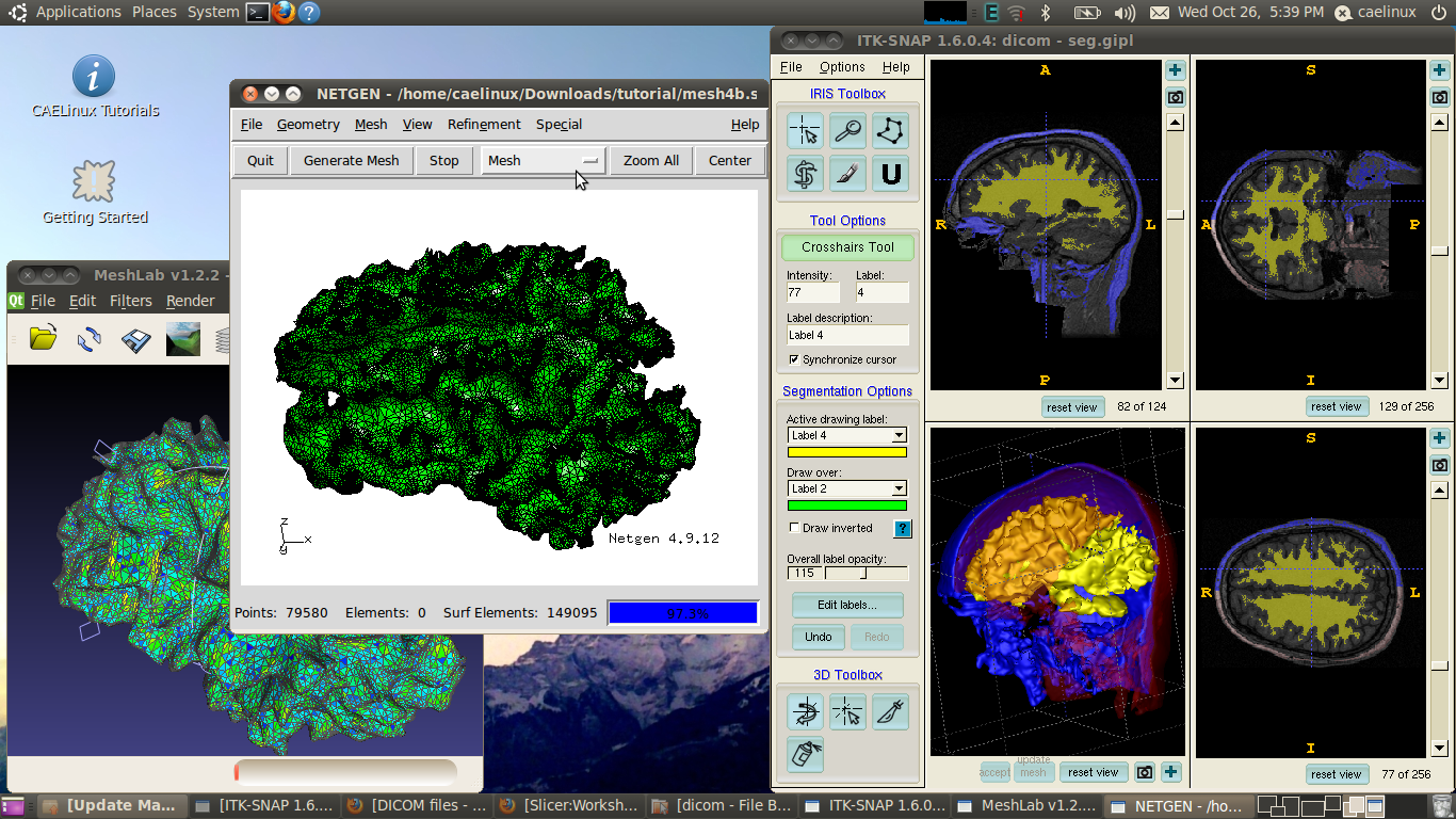3D biomedical analysis with ITK-Snap, Meshlab, Netgen and VoxelMesher